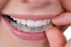Invisalign Braces | Luxe Dental Care