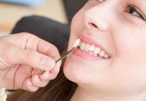Dental Crown | Luxe Dental Care