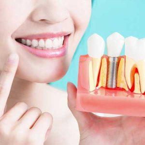 Dental Implant 6 | Luxe Dental Care