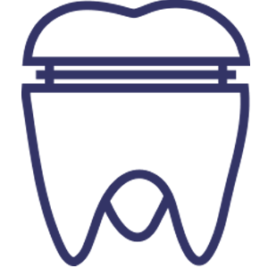 Crowns and Bridges | Luxe Dental Care