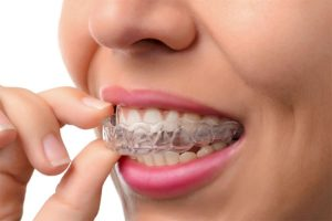 Mouthguard 3 | Luxe Dental Care