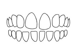 Teeth Spacing | Luxe Dental Care