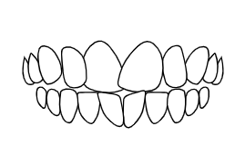 Teeth Rotations | Luxe Dental Care