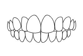 Crossbite | Luxe Dental Care