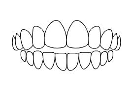 Openbite | Luxe Dental Care