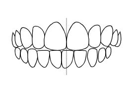 Teeth Aligning | Luxe Dental Care