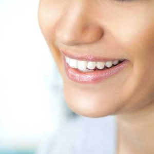 Teeth Whitening 6 | Luxe Dental Care