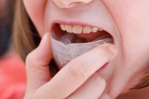 Mouthguard | Luxe Dental Care